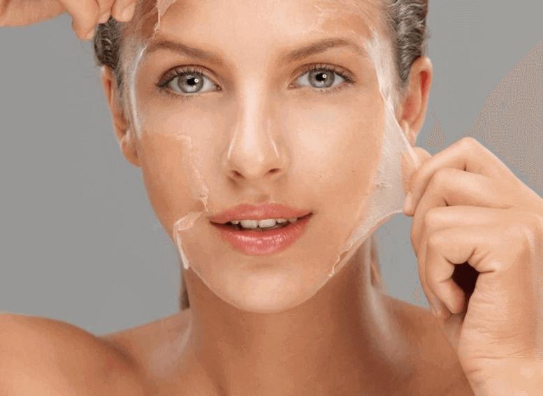 Химический пилинг для жирной кожи