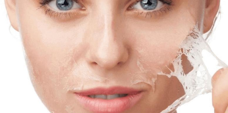 поверхностный химический пилинг для жирной кожи в домашних условиях