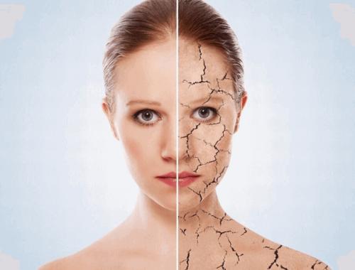 Сухая обезвоженная кожа в чем разница