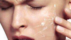 Сухая кожа лица причины, как помочь сухой коже