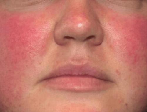 Аллергический дерматит клиника