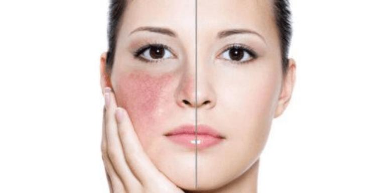 Механизмы развития повышенной чувствительности кожи