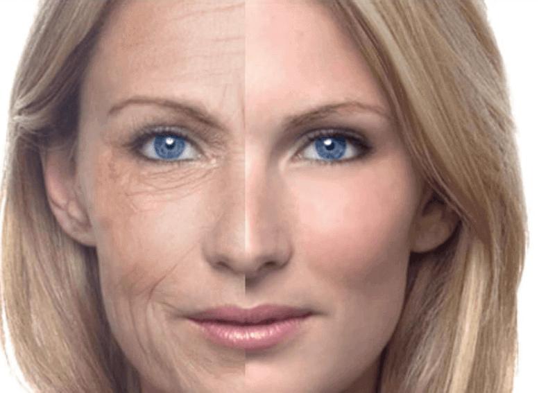 Старение кожи в разном возрасте