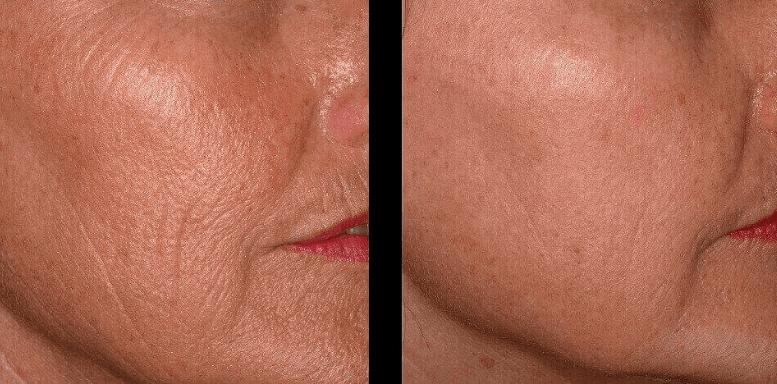 Лазерная дермабразия до после