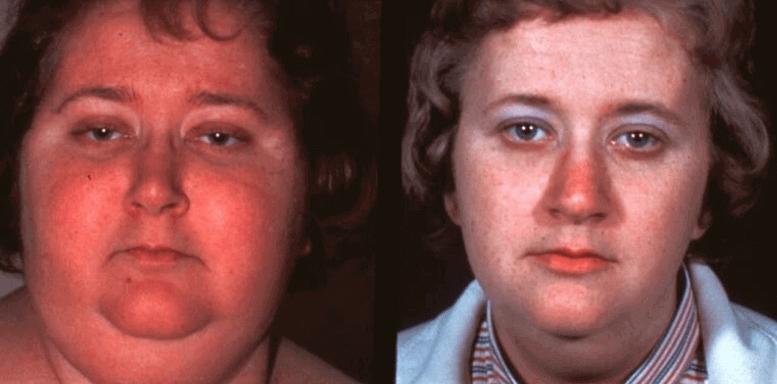 Морщины и гормоны роста