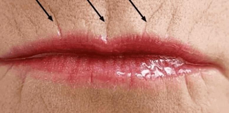 дефицит эстрогенов и старение кожи лица