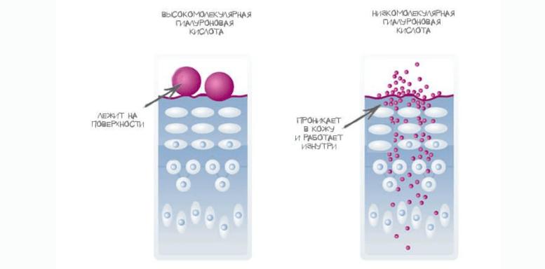 Виды гиалуроновой кислоты