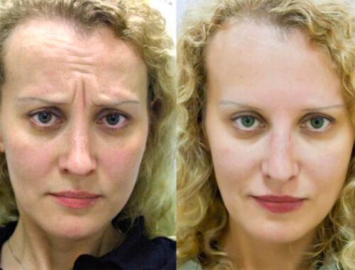 Ботокс уколы красоты, до и после