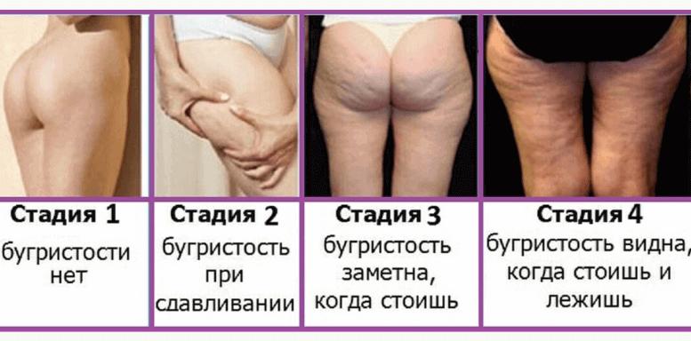 Целлюлит определение, стадии развития целлюлита