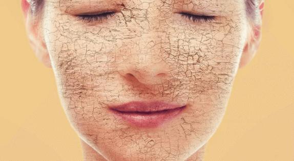 Типы кожи, сухая кожа