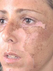 Химический пилинг для жирной кожи, осложнения химических пилингов