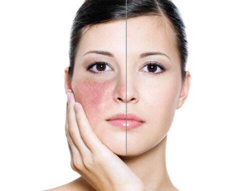 Чувствительная кожа лица причины, механизм развития