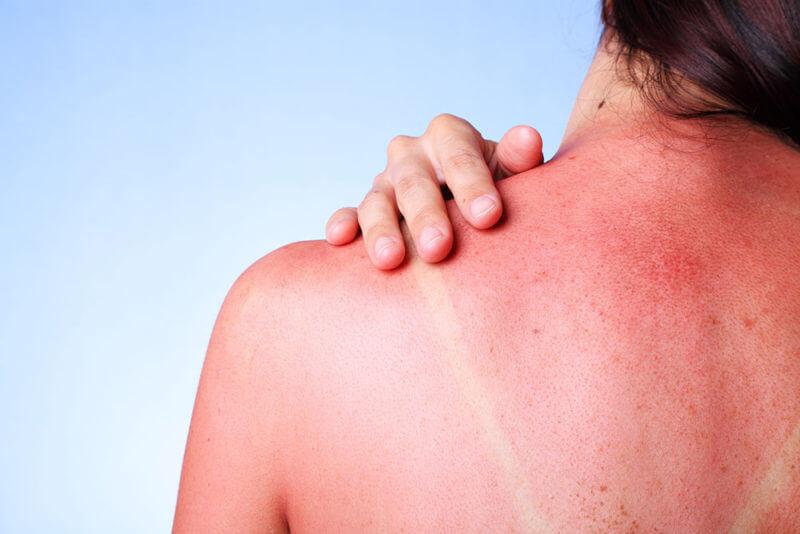 Солнечная аллергия