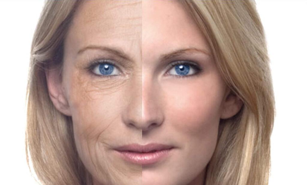 Старение кожи в разном возрасте, кожа в 30, кожа в 40, кожа в 50 лет