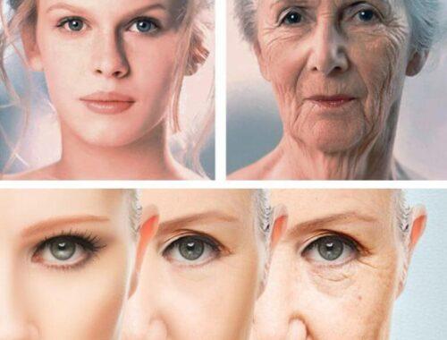 Типы старения кожи, 4 основных типа старения кожи