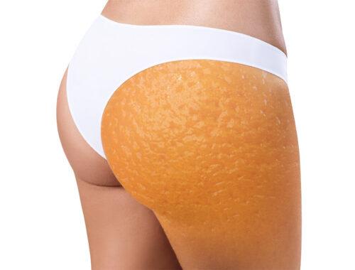 Целлюлит определение, стадии, апельсиновая корка на теле