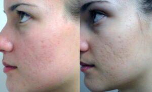 Восстановление кожи после шлифовки
