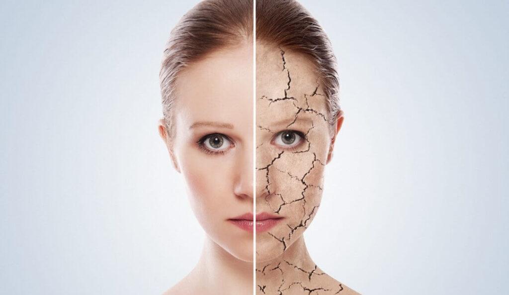 Сухая обезвоженная кожа - в чем разница?