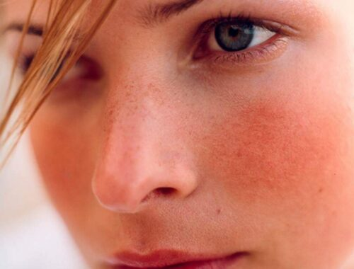 Уход за чувствительной кожей