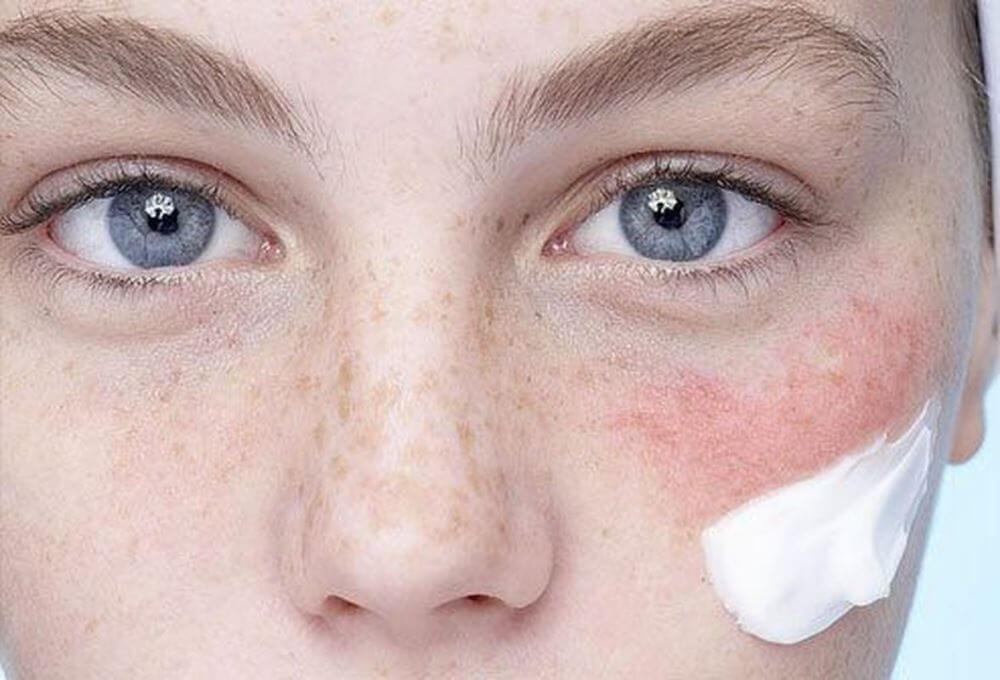 Причины возникновения аллергии на коже