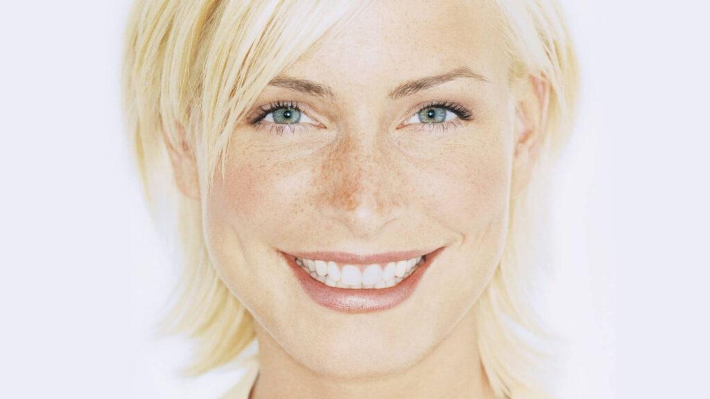 Фототипы кожи и склонность к пигментации, скандинавский тип кожи