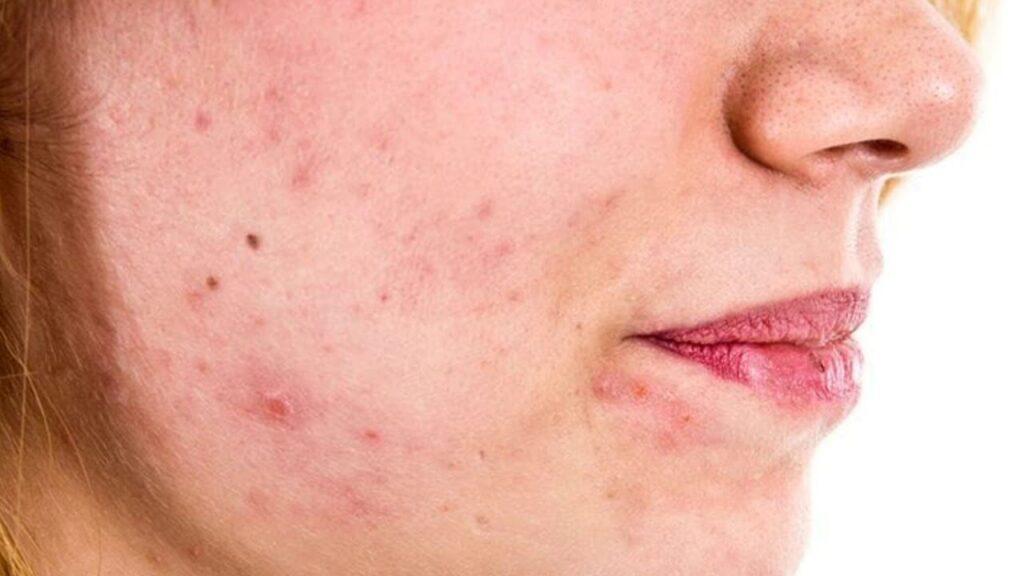 Причины жирной кожи, причины акне