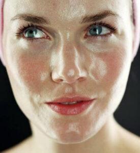 Причины жирной кожи, жирная кожа