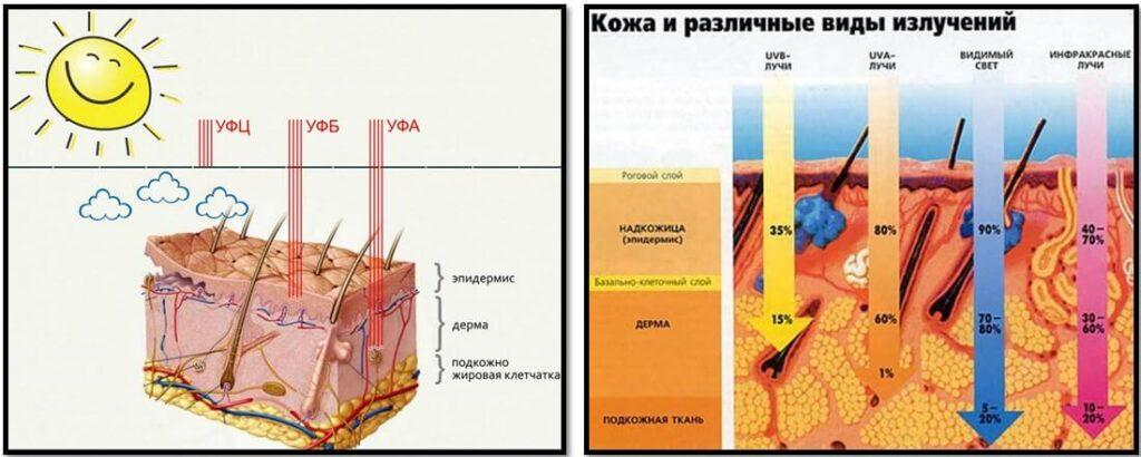 Коррекция фотостарения, ретиноиды