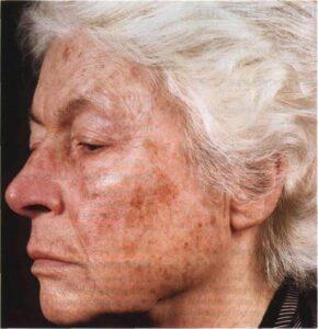 Недостаток гормонов коры надпочечников - дигидроэпиандростерон