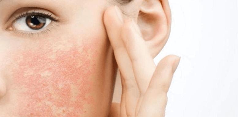 Причины возникновения аллергии на коже лица