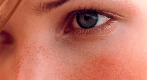 Типы кожи, чувствительная кожа