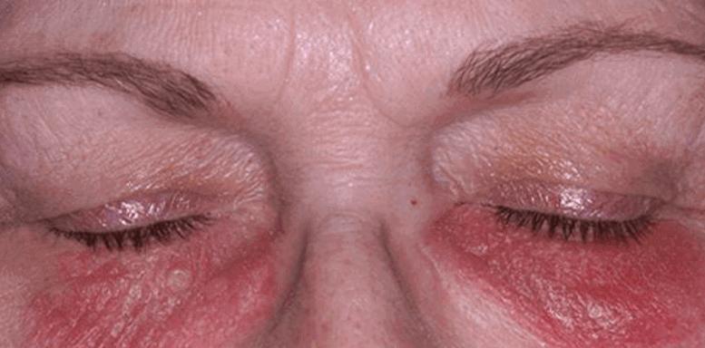 контактный аллергический дерматит
