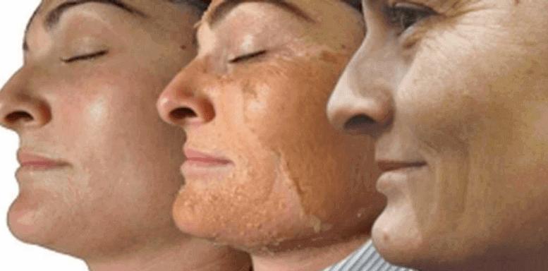 Химический пилинг этапы восстановления кожи