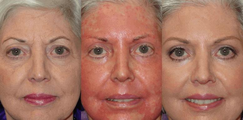 этапы восстановления кожи после химического пилинга